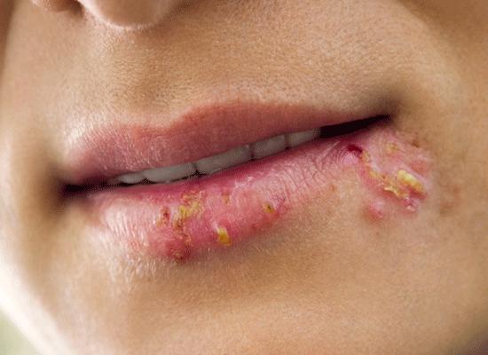 På kønsdele svamp Herpes genitalis