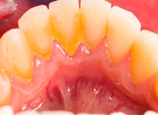 plak på tænder