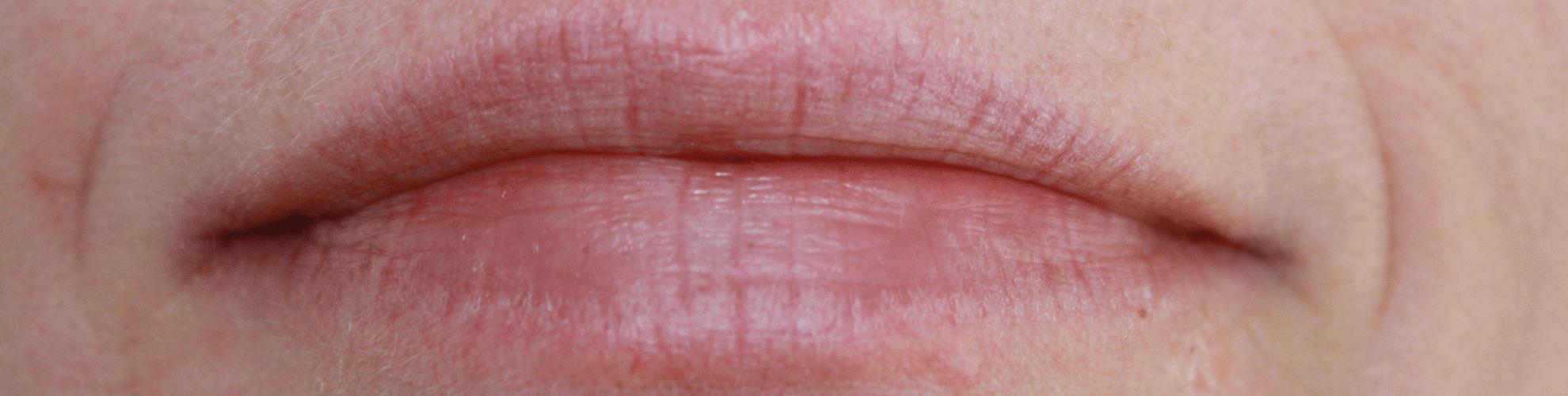 Brændende fornemmelse i munden